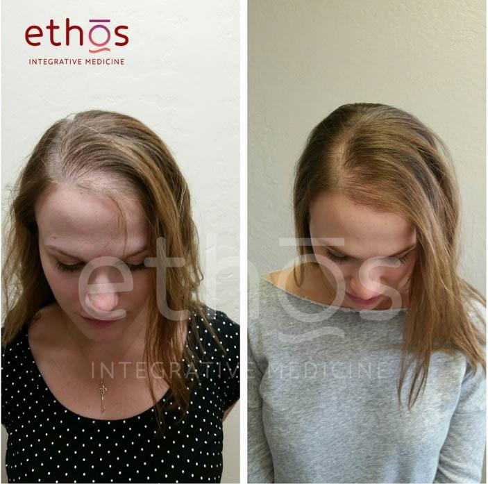 RJ Ethos Hair Restoration